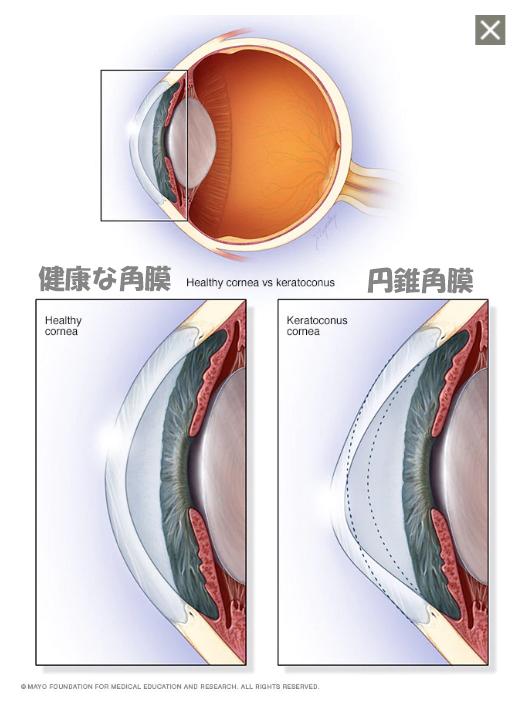 円錐角膜の形状